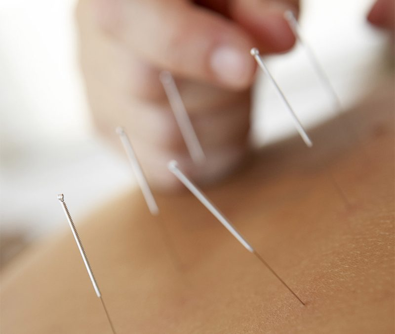 Acupuncture: A Natural Approach to Preventing Migraines