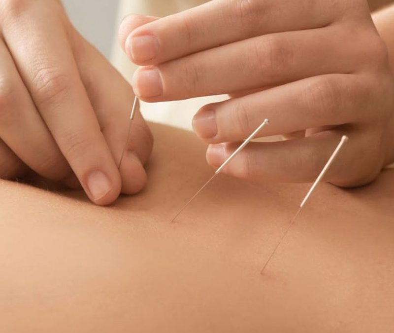 Debunking the Acupuncture Myth
